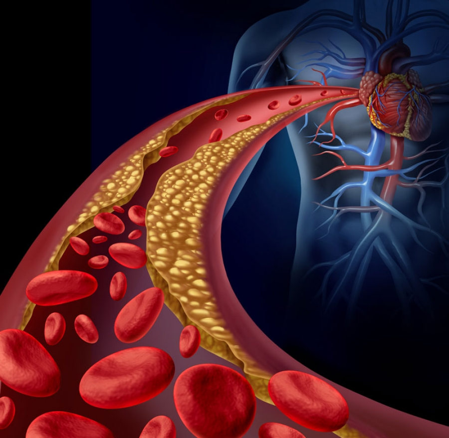 Atherosclerosis: Symptoms, Risk Factors, and Health Complications